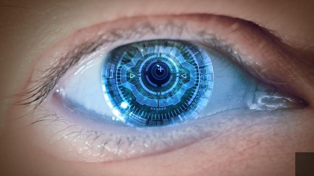 My laser eye surgery experience